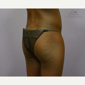 18-24 year old woman treated with Butt Augmentation before 3421191