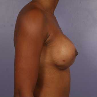 25-34 year old woman treated with Breast Reconstruction after 3226987