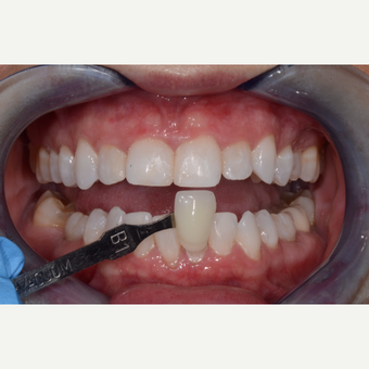 35-44 year old woman treated with Teeth Whitening after 3736091