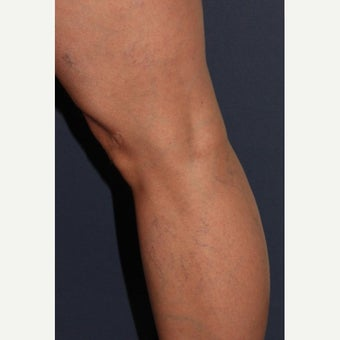 35-44 year old woman treated with Sclerotherapy before 1602480
