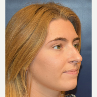18-24 year old woman treated with Rhinoplasty before 3251933