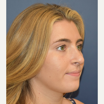 18-24 year old woman treated with Rhinoplasty after 3251933