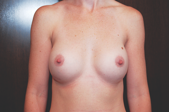 Inspira Breast Implants after 1515943