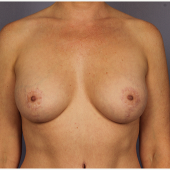35-44 year old woman treated with Breast Lift with Implants after 3817107