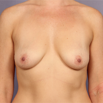 35-44 year old woman treated with Breast Lift with Implants before 3817107