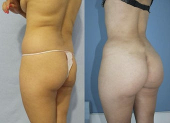 Supercharged Brazilian butt lift combining gluteal silicone implant and fat transfer.  after 1285080