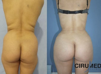 Supercharged Brazilian butt lift combining gluteal silicone implant and fat transfer.  before 1285080