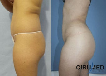 Supercharged Brazilian butt lift combining gluteal silicone implant and fat transfer.  1285080