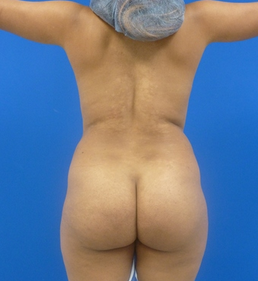 23 y.o. female - Liposuction and fat transfer to buttocks & hips - 1150 cc per side before 768946