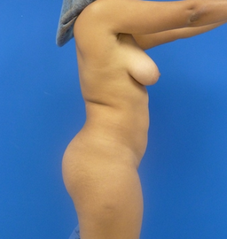 23 y.o. female - Liposuction and fat transfer to buttocks & hips - 1150 cc per side 768946