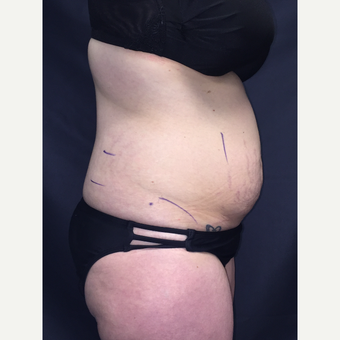 25-34 year old woman treated with SculpSure before 3725115