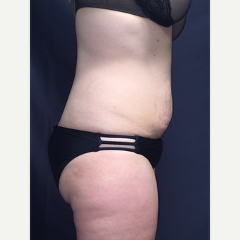 25-34 year old woman treated with SculpSure after 3725115