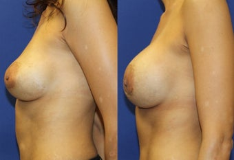 35yo, Breast Implant Exchange (Saline 650cc to silicone 700cc) after 1283519