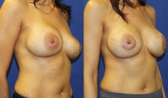 35yo, Breast Implant Exchange (Saline 650cc to silicone 700cc) 1283519