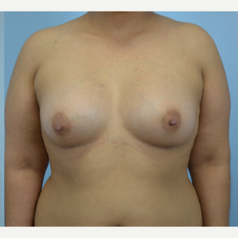 26 year old woman treated with Breast Augmentation- 500 cc high profile silicone gel implants after 3432265