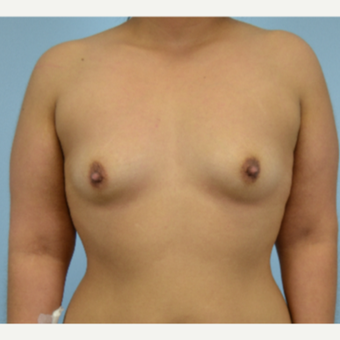 26 year old woman treated with Breast Augmentation- 500 cc high profile silicone gel implants before 3432265
