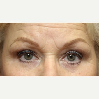 59 year old woman treated with an upper and lower lid blepharoplasty and lateral canthopexy after 2345443