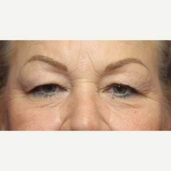 59 year old woman treated with an upper and lower lid blepharoplasty and lateral canthopexy before 2345443