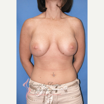 25-34 year old woman treated with Breast Augmentation after 3095449