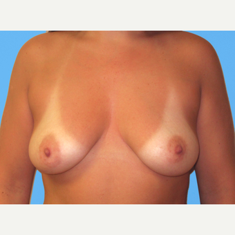 Breast Augmentation before 3732455