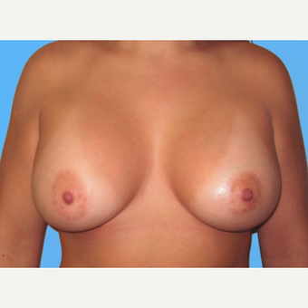 Breast Augmentation after 3732455
