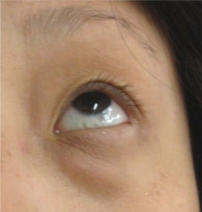 25-34 year old woman treated with Eye Bags Treatment before 2715808