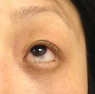 25-34 year old woman treated with Eye Bags Treatment after 2715808