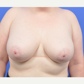 25-34 year old woman treated with Breast Reduction before 3520509