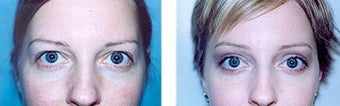 Browlift and Upper Blepharoplasty