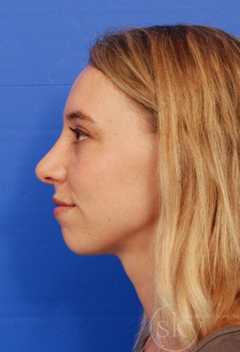 Rhinoplasty - Cosmetic after 3014796
