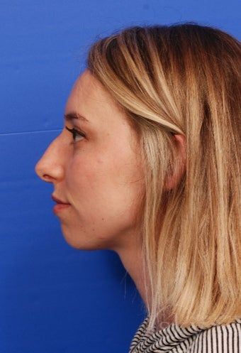 Rhinoplasty - Cosmetic before 3014796