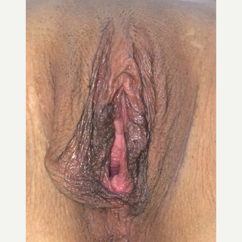 25-34 year old woman treated with Vaginal Rejuvenation before 3502578