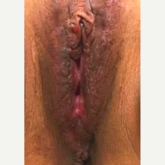 25-34 year old woman treated with Vaginal Rejuvenation after 3502578