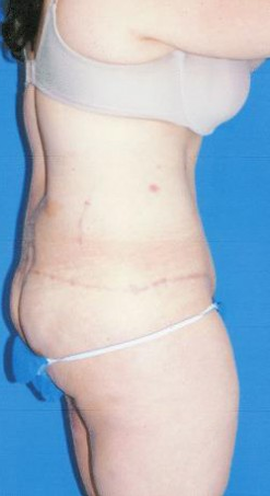 Circumferential Tuck after 863788
