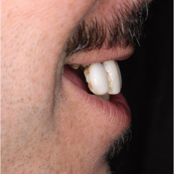 45-54 year old man treated with All-on-4 Dental Implants before 3056533
