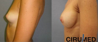 Breast augmentation 1333101