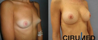 Breast augmentation after 1333101
