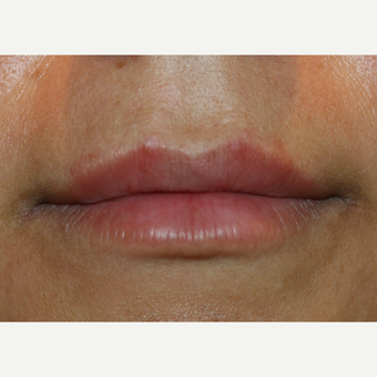 25-34 year old woman treated with Lip Augmentation after 3300184