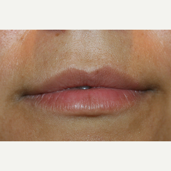 25-34 year old woman treated with Lip Augmentation before 3300184