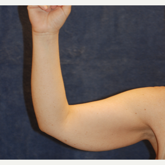 42 year old woman with large weight loss for arm lift before 3129173