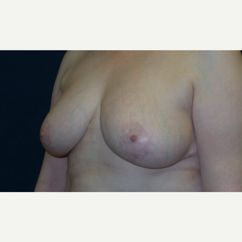 45-54 year old woman treated with Breast Reduction after 3467205