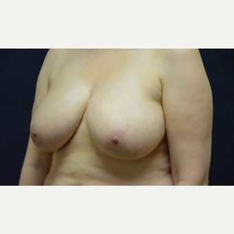 45-54 year old woman treated with Breast Reduction before 3467205