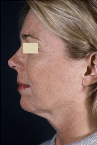 Lower Facelift before 101599