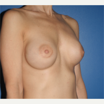 35-44 year old woman treated with Breast Implant Revision: Saline to Silicone before 3788646