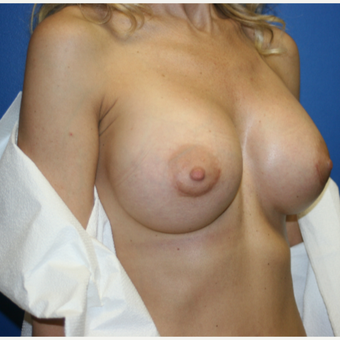 35-44 year old woman treated with Breast Implant Revision: Saline to Silicone after 3788646