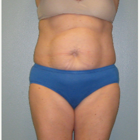 57 year old woman treated with Tummy Tuck before 3460099