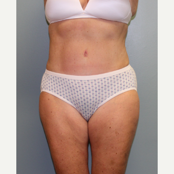 57 year old woman treated with Tummy Tuck after 3460099