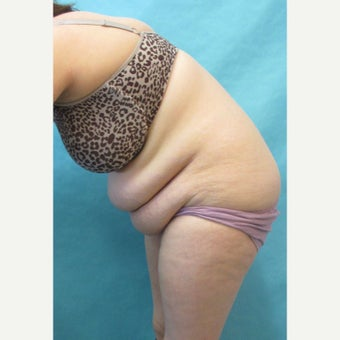 25-34 year old woman treated with Tummy Tuck 1781063