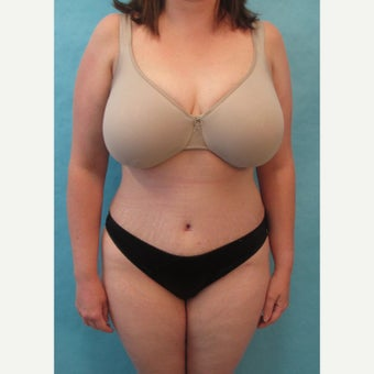 25-34 year old woman treated with Tummy Tuck after 1781063