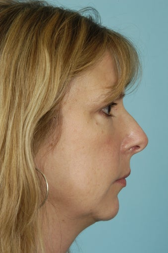 46 yo Female Rhinoplasty, Genioplasty before 1436649